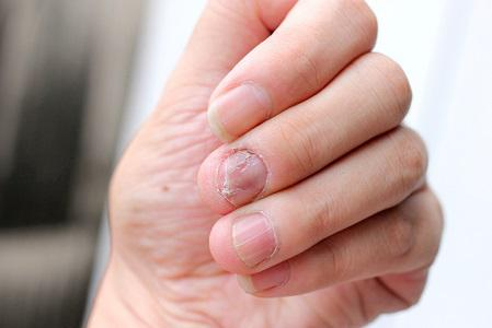 fungal infections treatment from Illinois Dermatologist