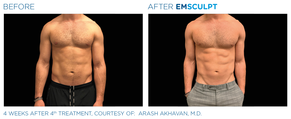 Emsculpt treatment Crystal Lake area for the chest