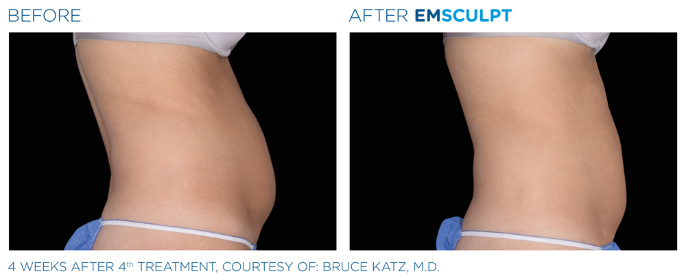 Emsculpt treatment Lake in the Hills area for the lady