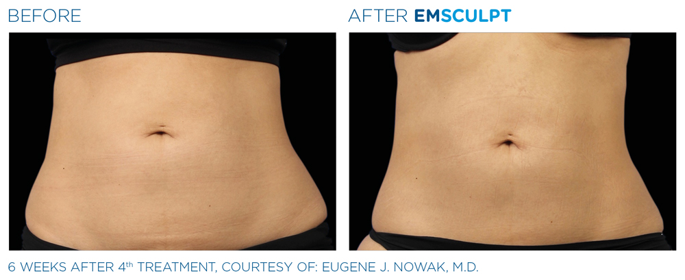 Emsculpt treatment Woodstock area for the arms