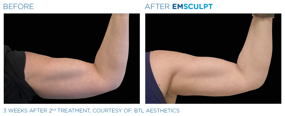 Emsculpt treatment Huntley area for the arms