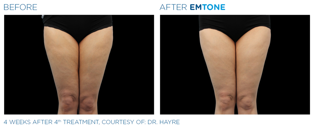 Emsculpt treatment WoodMcHenrystock area for the Thigh