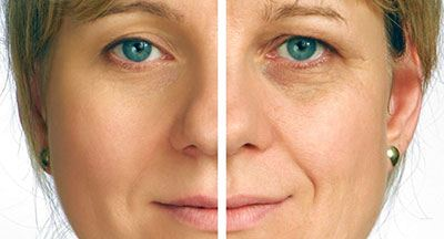 Before and after picture of facelift Injectable Fillers treatment, Illinois