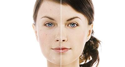 Before and after picture of facial treatment, Illinois