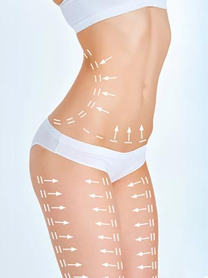 Fat Removal Treatment Algonquin Article Image at Dermatology Specialists of Illinois