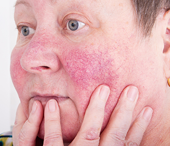Rosacea Laser Treatment Algonquin Side Effects Of Laser Treatment