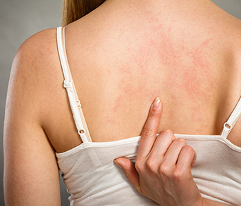 Dr. Khanna Vikram at Dermatology Specialists of Illinois understands different skin rash types for effective treatment.