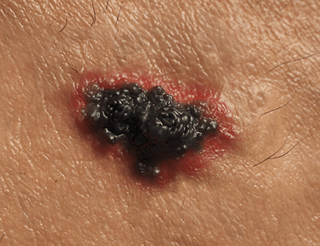 Skin Cancer treatments Medical and surgical