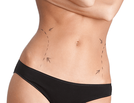 Fat reduction with CoolSculpting Cosmetic treatments