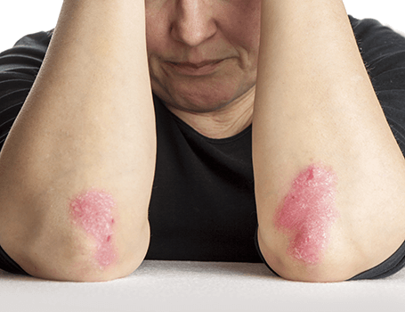Eczema treatments Medical and surgical
