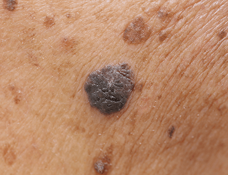 Moles treatments Medical and surgical