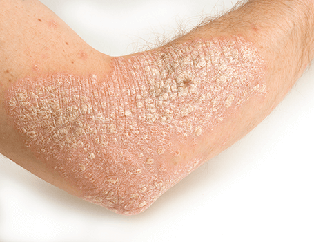 Psoriasis treatments Medical and surgical