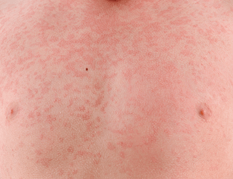 Rashes treatments Medical and surgical