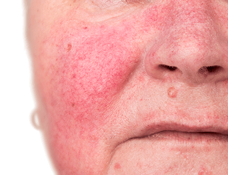 Rosacea treatments Medical and surgical