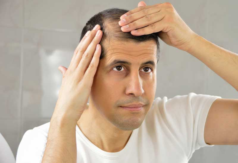 Benefits of PRP Hair Loss treatment in Algonquin
